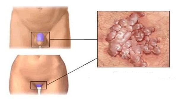 papillomavírus női condyloma