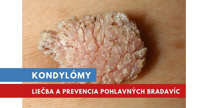october 2009 Časopis České urologické společnosti ČLS JEP