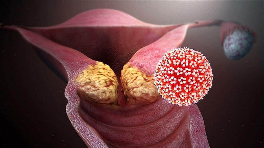 papillomavírus pozitív kenet