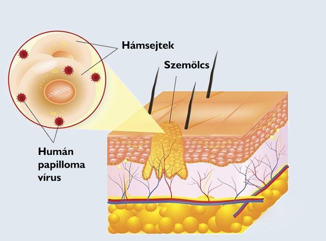 a genitális szemölcsök ciszta