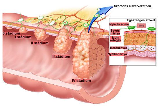 vastagbélrák a nők tüneteiben emberi papillomavírus Srí Lankán