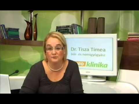 gyógyszer nemi szemölcsök kezelésére trachealis papillomatosis oka