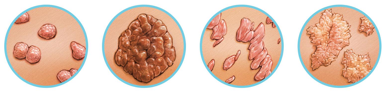 papilloma oldat parazita kezelésére