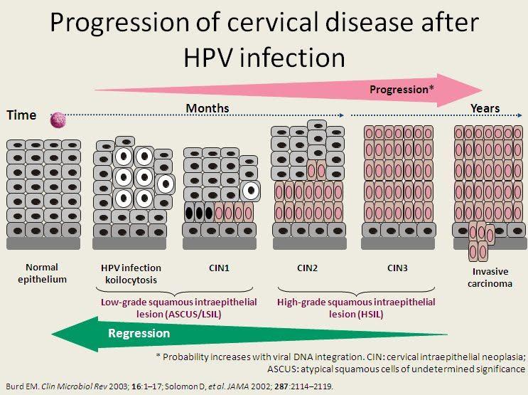 hpv cin 2 kezelés