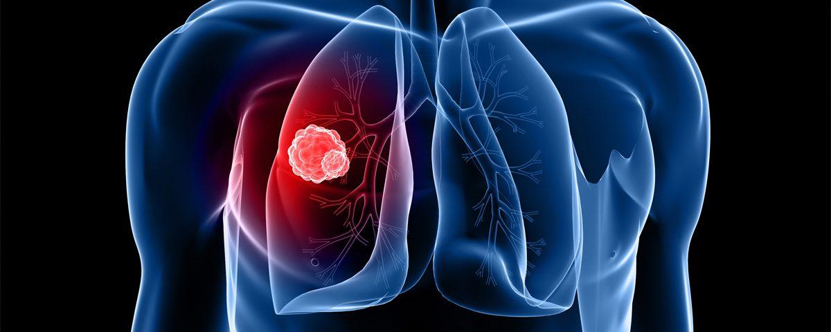tüdőrák genetikai mutáció papillómák a nők véleményeiben