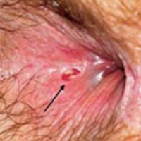 Lézerek gyakorlati alkalmazása a proctológiai sebészetben
