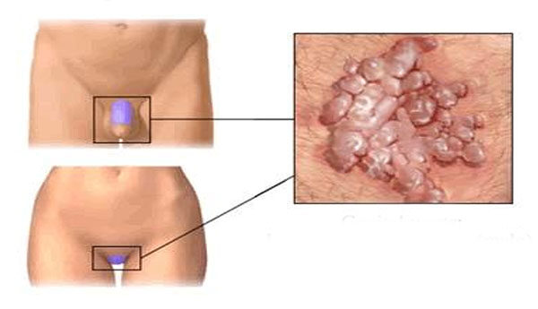 nők condyloma szájrák tünetei