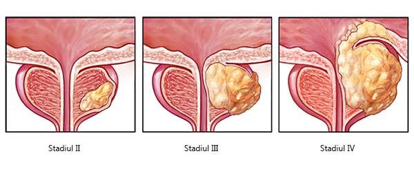 papilloma fórum a torokban a nemi úton nem terjedő emberi papillomavírus-fertőzés