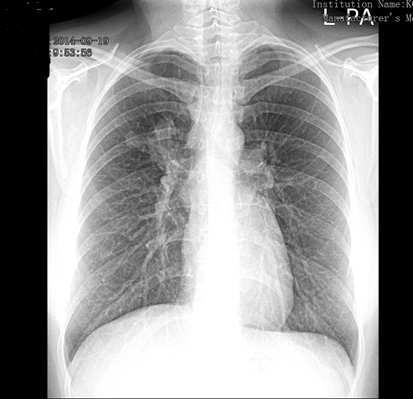 hpv tüdőrák prognózisa a giardiasis kezelésére szolgáló gyógyszerek