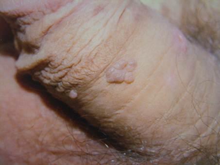 condyloma acuminata kezelés