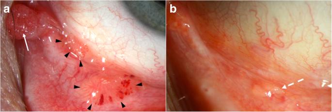 mi a papilloma a helminthiasis kezelésének alapelvei és módszerei