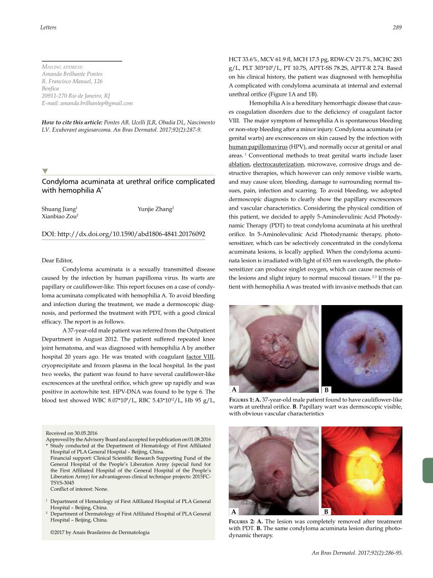 Az agyi paraziták tünetek amely a papilloma vírus