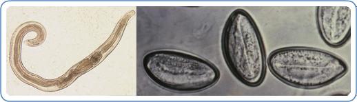 féregtojások a széklet kezelésében a féreg toxinok eltávolítása