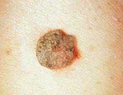 hogyan kell anthelmintikus protox cseppeket szedni a férgek megszüntetése gyermeknél