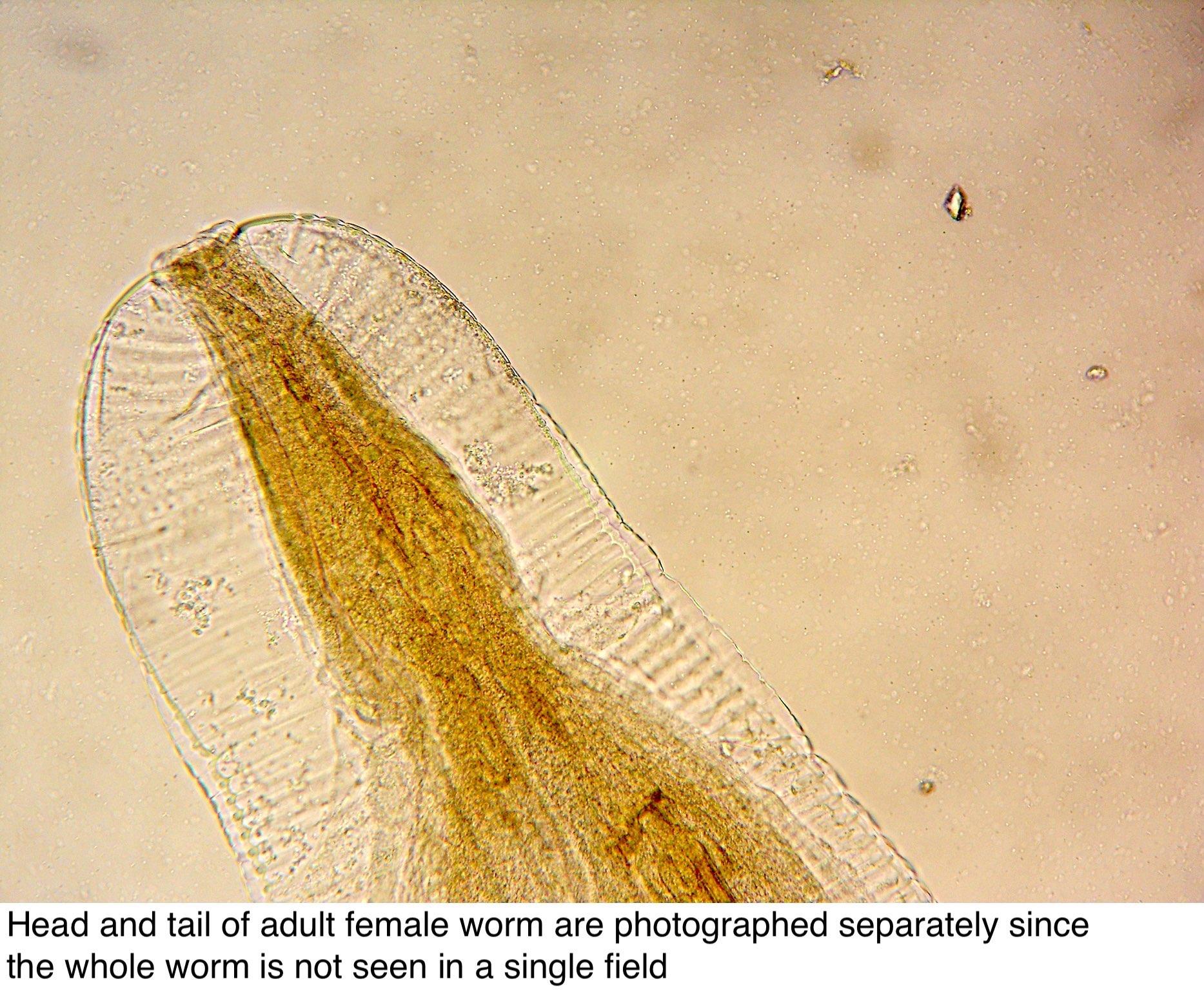 enterobius vermicularis biológiai ciklus