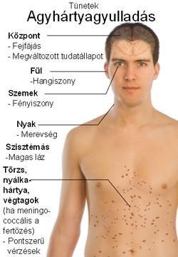 a helmint fertőzés felnőttkori tünet