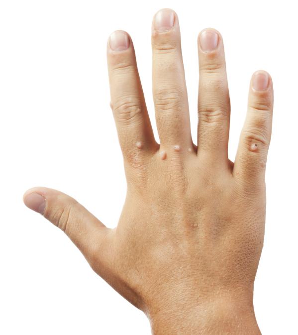 tabletta minden típusú féreg számára giardia a tünetben