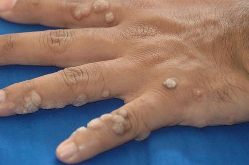 hpv szemölcs ujjak schematosomiasis haematobium