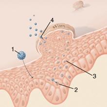 condyloma a szemérem oldalán férfiaknál parazita allergia kezelése