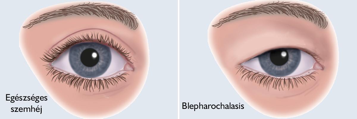 A szemölcs eltávolítása, kezelése Hogyan lehet fájdalommentesen eltávolítani a papillómákat
