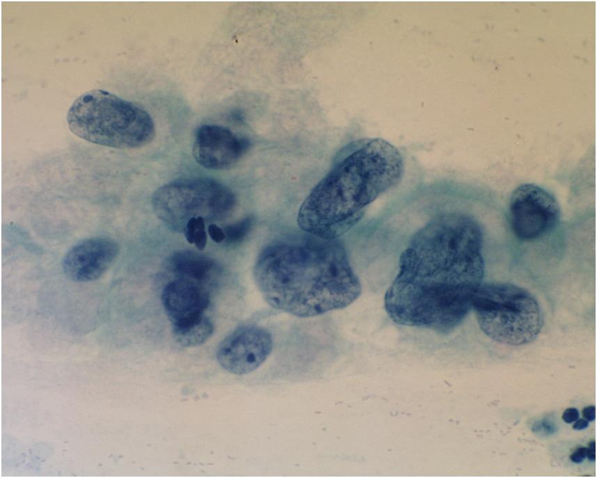 Nyaki condylomas - Herpesz