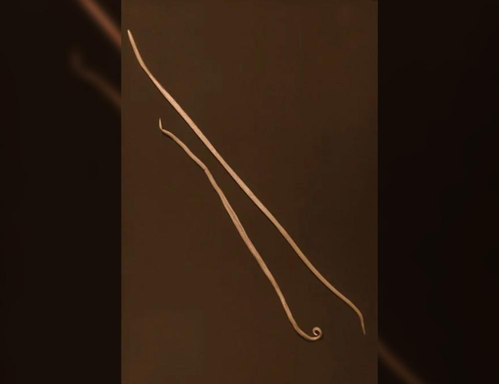 A pinwormok diagnózisa és kezelése Széles spektrumú féreggyógyszerek gyermekek számára