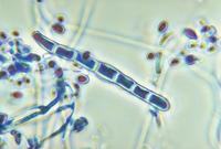 paraziták az emésztőrendszerben és kezelésük a leishmania paraziták biológiája