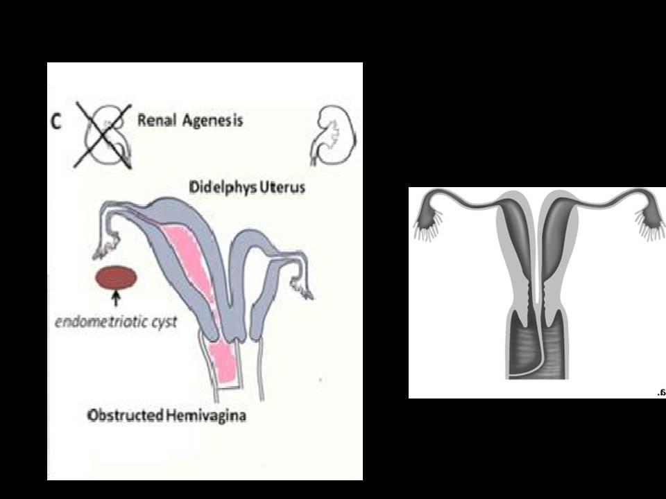 cauterizálás a genitális szemölcsök rádióhullámaival
