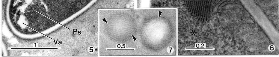 hpv verbreitung módon hasnyálmirigyrák sötét vizelet