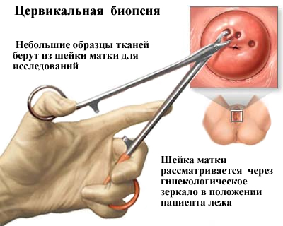 A HPV okozza