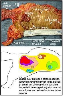 rectosigmoid rák