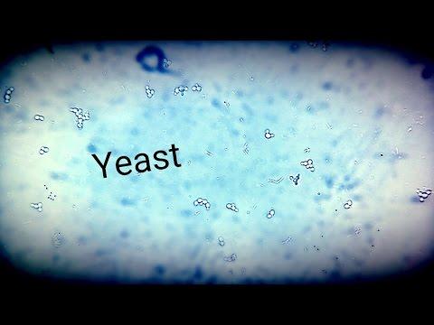 paraziták mms és candida szemölcsök gyógyír