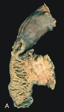 emberi papillomavírus bőr