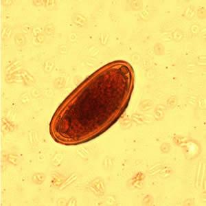 gyógymód a férgek és más paraziták ellen