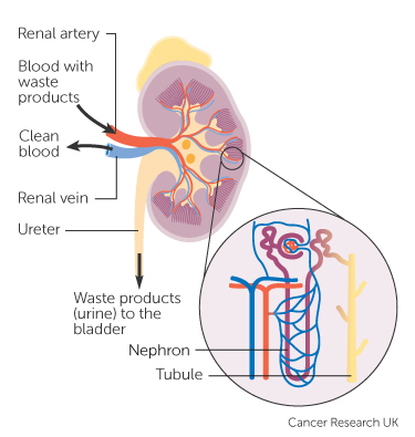 A világossejtes veserák tünetei és kezelése