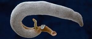 hogyan nyilvánulnak meg a helmintusok? papillomavírus emberek tünetei