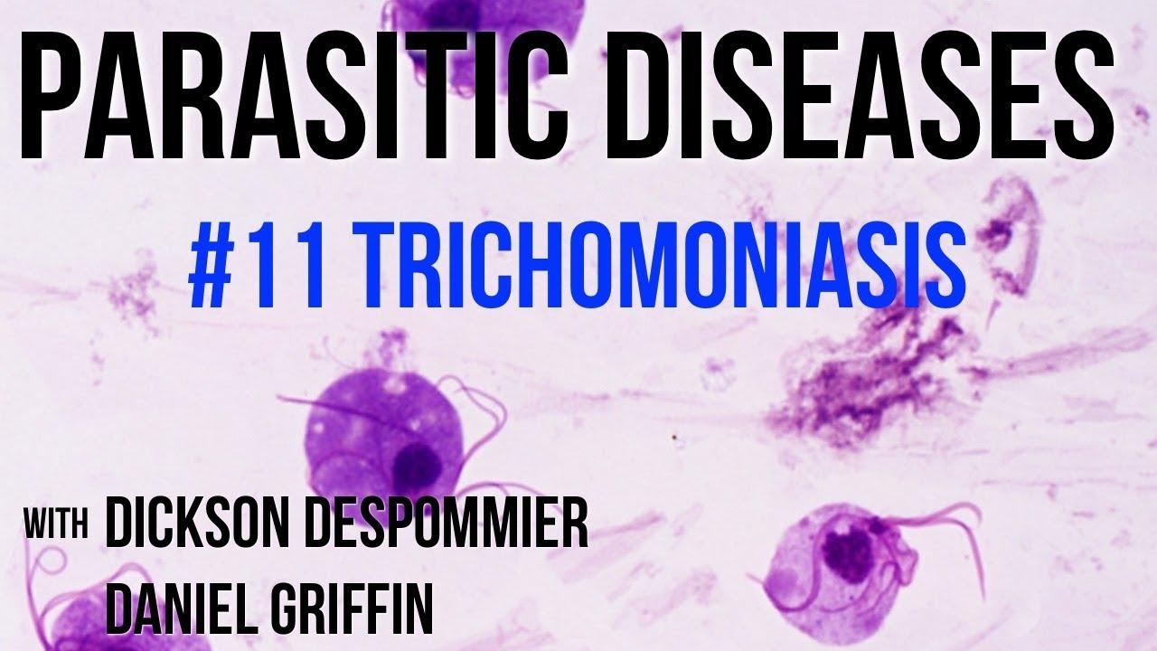 Mi van, ha a kenetben Trichomonas található