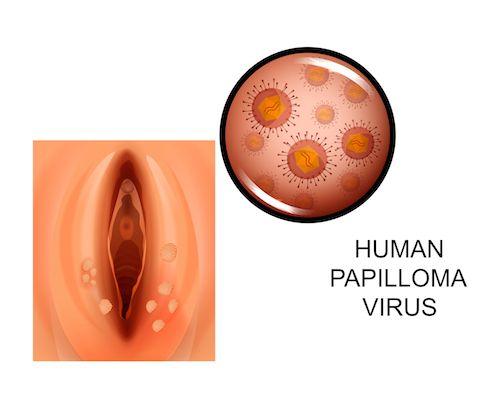 Ureaplasma norma a férfiak véleménye - Ureaplasma baktérium - Már a méhen belül is fertőz
