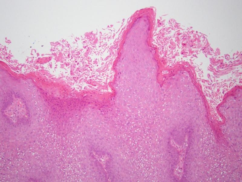 condyloma acuminatum hpv törzsek a genitális szemölcsök növekedése papillómákkal