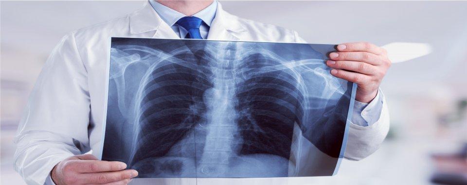a tüdő tüneteinek parazita kezelése