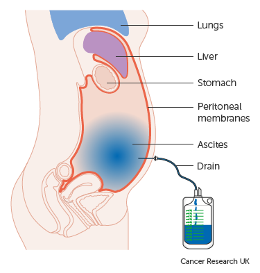 peritoneális rákcsomók paraziták az emberi vérben