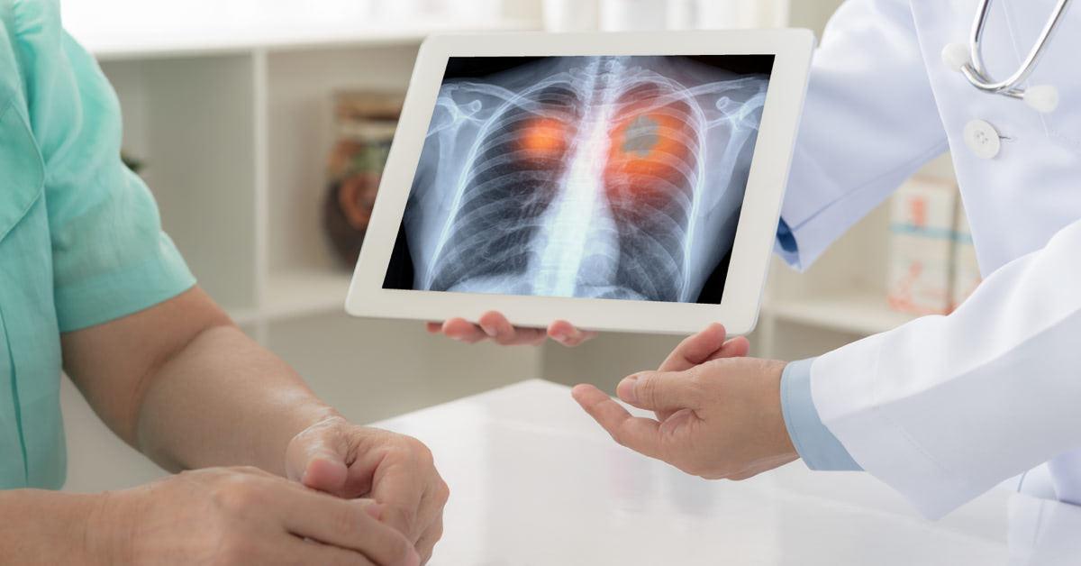 tüdőrák csontáttét