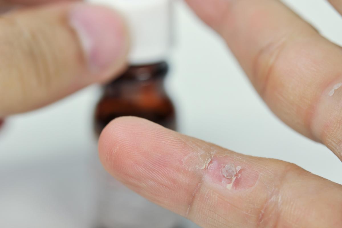 szemölcs kezelés hidrogén-peroxid