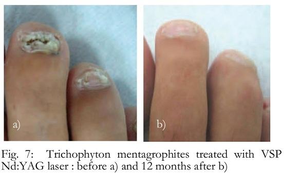 trofikus fekélyek a lábujjak között hpv vírus rak grlica maternice