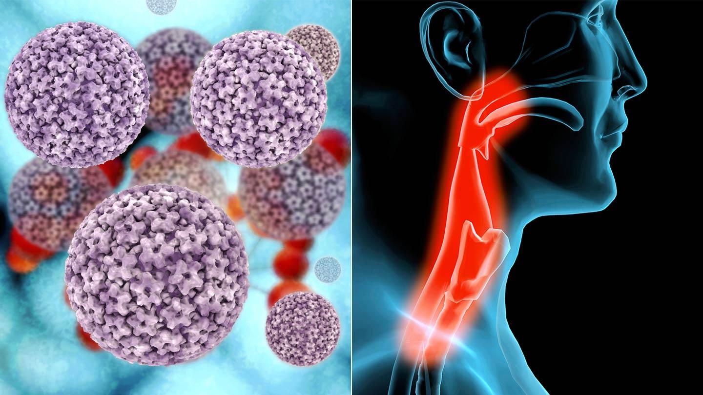 emberi papillomavírus hpv a torokban olcsó és hatékony készítmények a férgek ellen