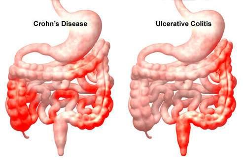Vastagbél gyulladásos betegségei