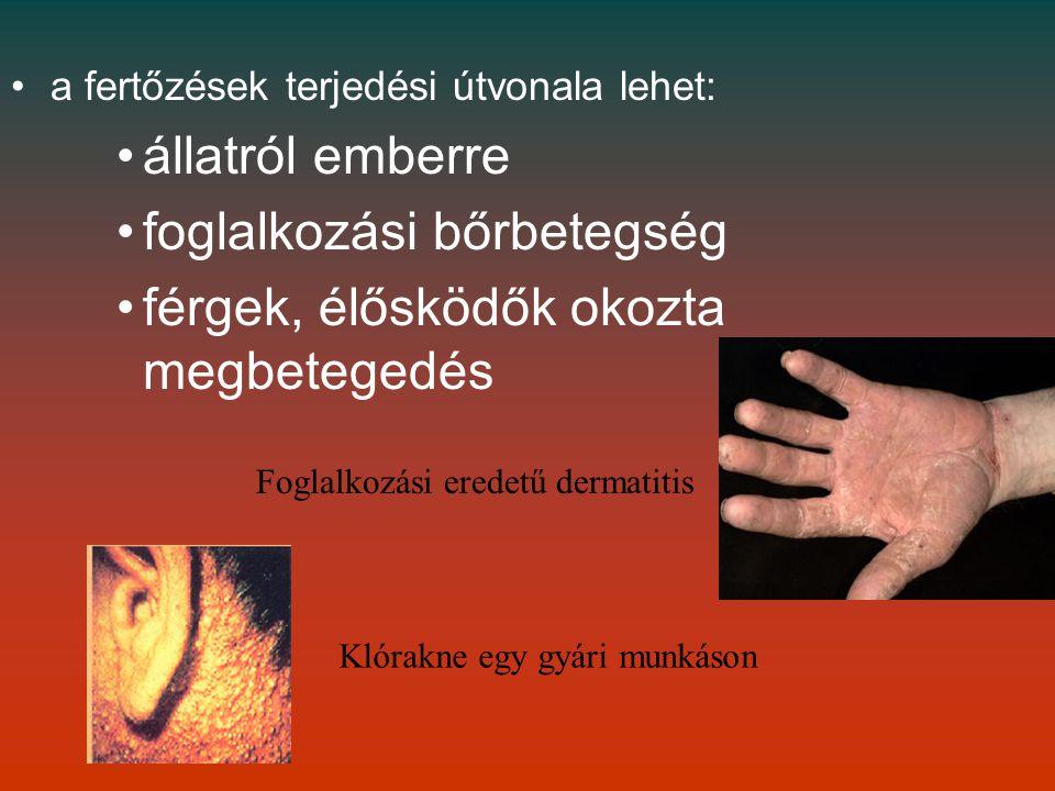 mik a szemölcsök a nőknél pinworms betegség kezelése