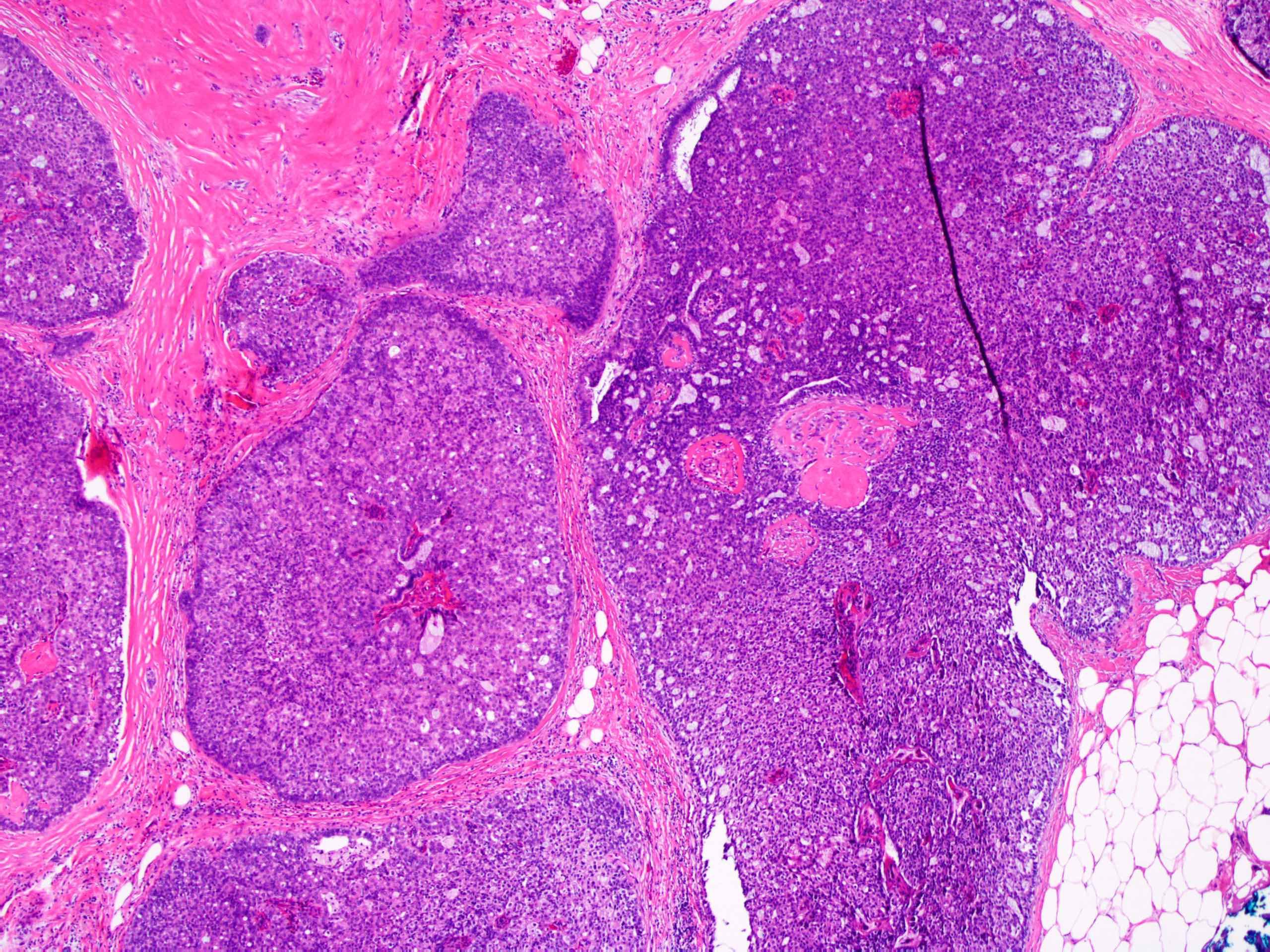 vastagbélrák reszekció torokrák okoz HPV vírust
