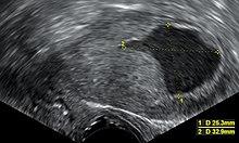 endometrium rák mri vizsgálat pikkelyes papilloma histo