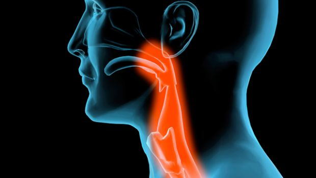 A fej és a nyak daganatai - okok és tünetek